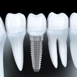 dental-implants-1024x768